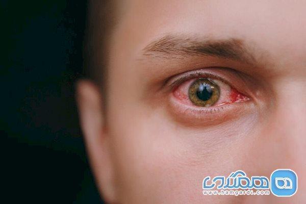 آیا ابتلا به کرونا با علائم چشمی همراه است؟